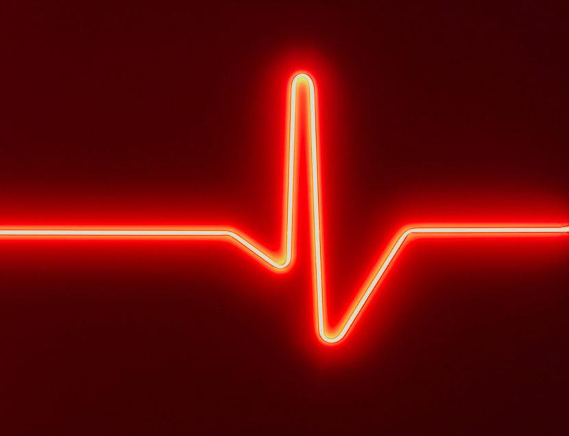 Indira_Cesarine_HEARTBEAT-No-2_Neon_2017_v2x.jpg